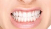 Botoks Tedavisinde Diş Sıkma