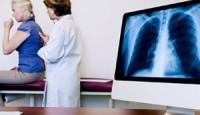 Mezotelyoma Kanseri Hakkında Bilmeniz Gerekenler